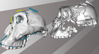 image of a skull reconstruction